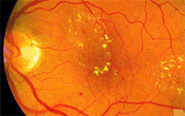 Diabetic retinopathy what is it?